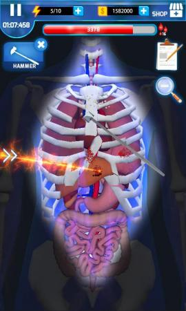 Surgery Master Screenshot